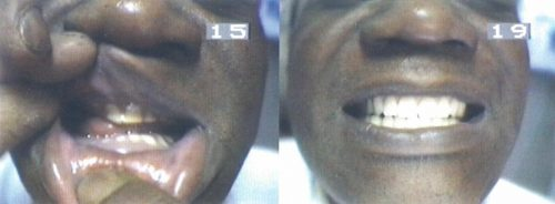 Before-and-After-BPS-Complete-Upper-and-Complete-Lower-Denture