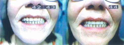 Before-and-After-Complete-Upper-Implant-Supported-Denture-Denture