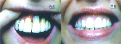 Before-and-After-Flexible-Implant-Facing