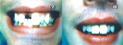 Before-and-After-Flexible-one-tooth-Upper-Denture